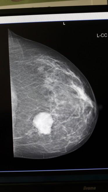 Mammographie von oben