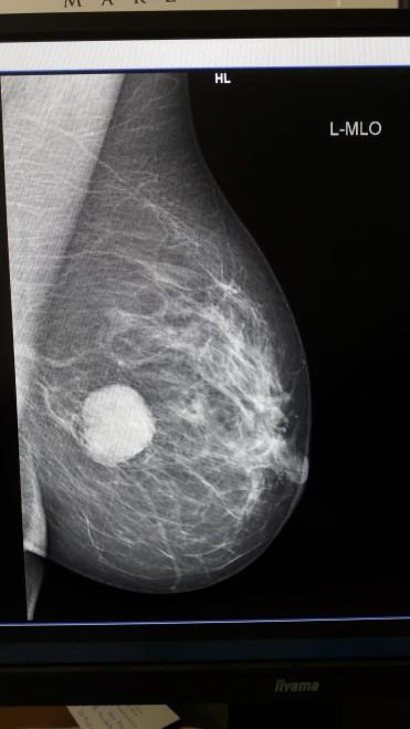 Mammographie von der Seite